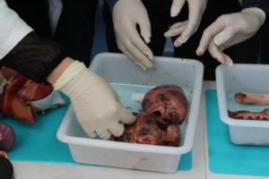 Práctica anatomía patológica con un corazón real